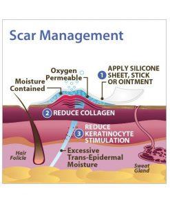 Biodermis Xeragel Silicone Scar Ointment