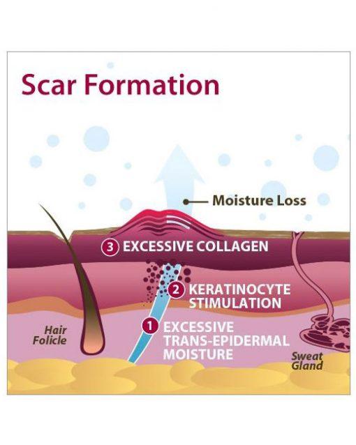 Biodermis Pro-Sil Silicone Scar Stick