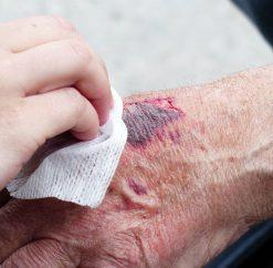 Wound & Skin Care